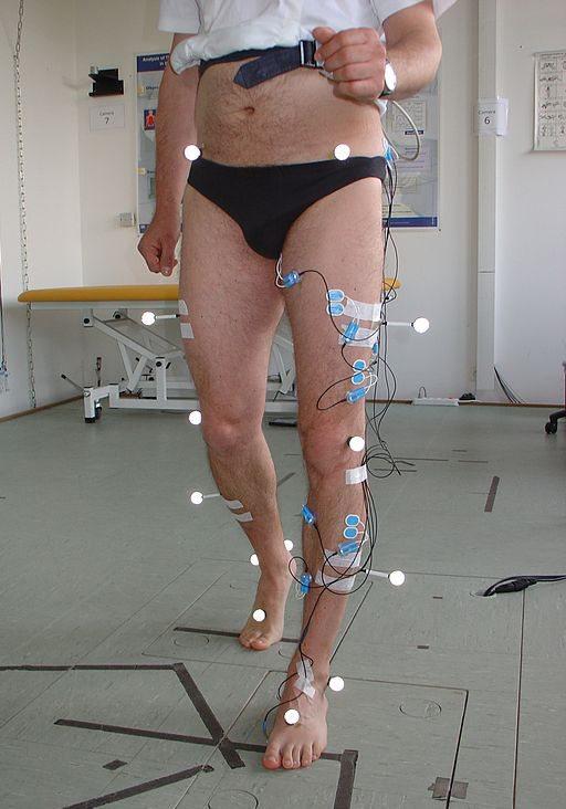 Elektrodeja (siniset) kiinnitettynä koehenkilöön. Kuva: Jakarandatree / Wikimedia Commons